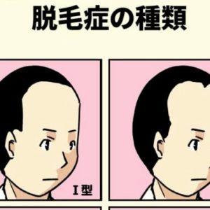 症 脱毛 ひ 性 こう